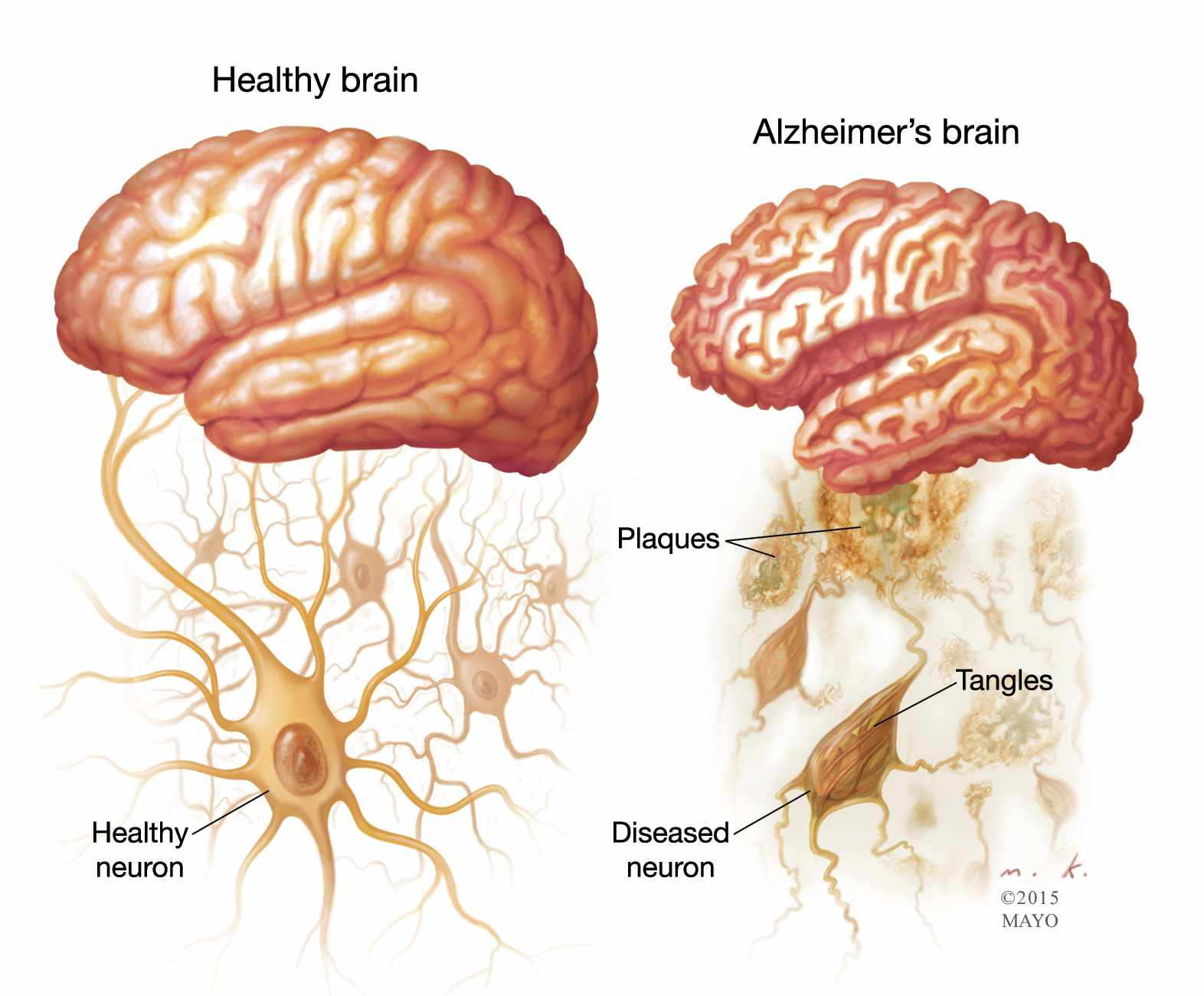 a description of alzheimer a brain disorder Alzheimer's disease is the most common cause of dementia in some countries alzheimer's disease is a brain disease that worsens over time symptoms are usually subtle at first, then become worse.