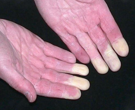 Raynaud's Phenomenon / Syndrome
