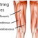 Hamstring Tears and Strains