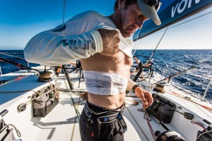October 14, 2014. Leg 1 onboard Team Vestas Wind: Tony Rae shows his rib injury after 4 days at sea. Team Vestas Wind on the Volvo Ocean Race.