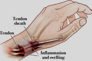 Photo of a hand with tendons